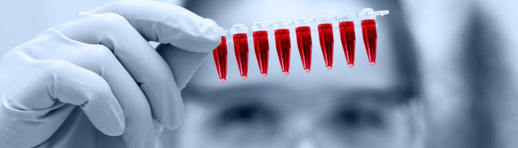 Bloedampullen q koorts test